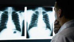 Silikozis Hastalarına Devlet Yardımları 2020